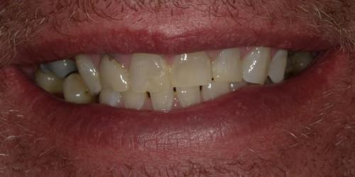 Full Mouth Rehab2 - before